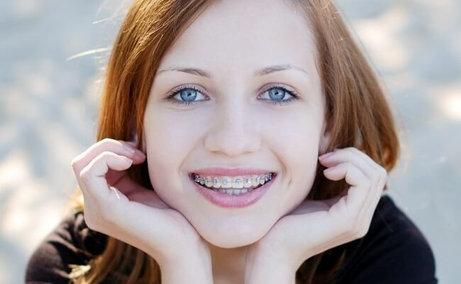 Girl with braces anyone know her name 3